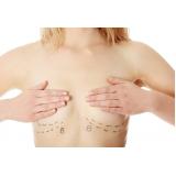 onde fazer mastopexia mamoplastia redutora Quitandinha