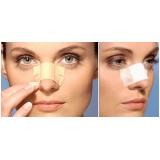 rinoplastia em nariz achatado valor Itaperuçu