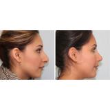 rinoplastia em nariz achatado Araucária