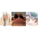 rinoplastia em nariz achatado