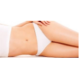 Abdominoplastias